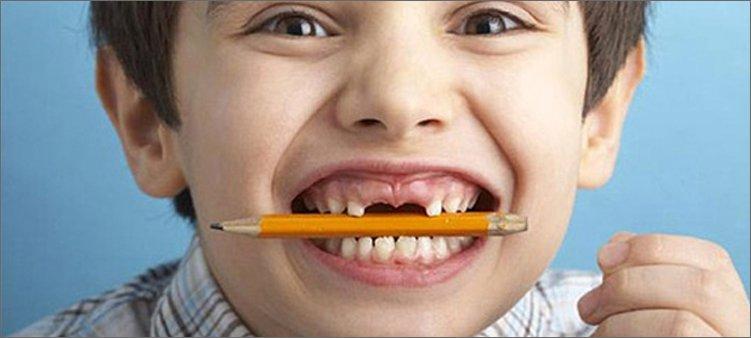 мальчик-держит-в-зубах-карандаш