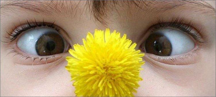 глазки-смещены-к-носу