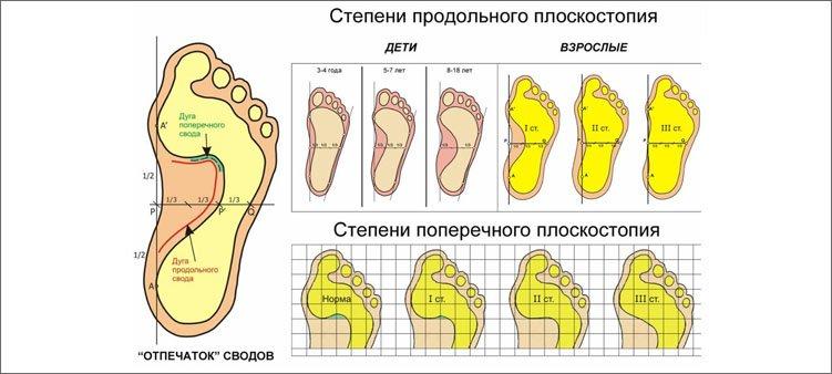 степени-плоскостопия
