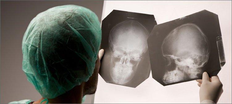 врач-разглядывает-снимки-головы