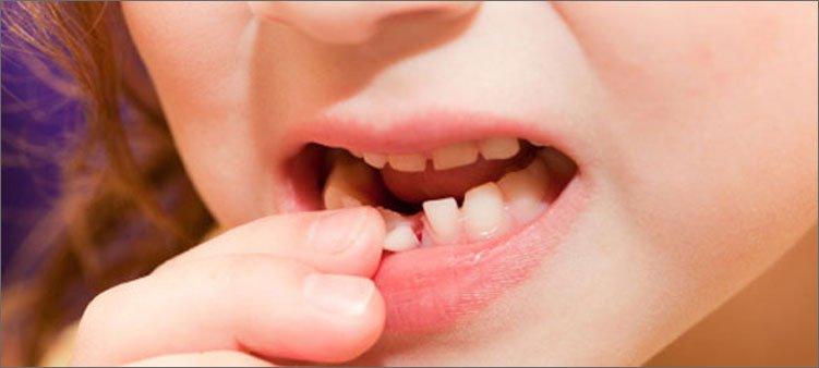 шатается-молочный-зуб