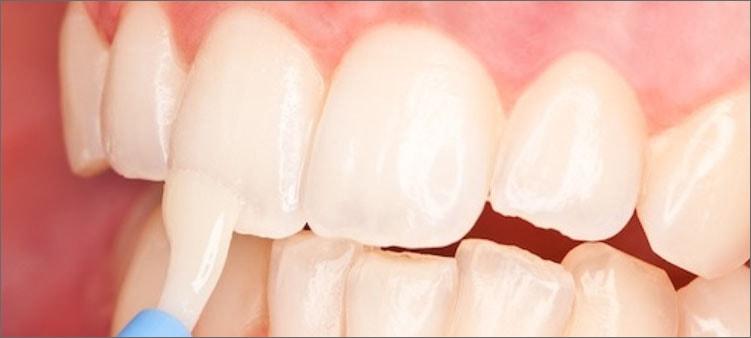 реминерализация-зубов