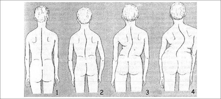 четыре-степени-сколиоза