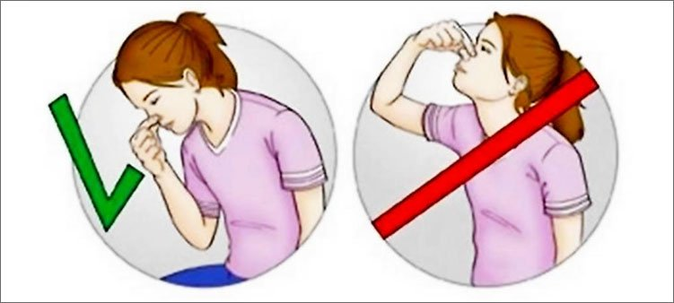 правильное-положение-головы-при -остановке-кровотечения-из-носа