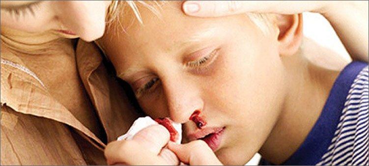 мама-останавливает-кровь-из-носа-ребенку