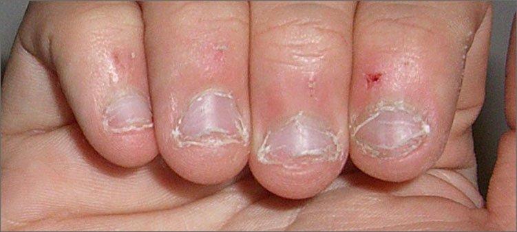 некрасивые-сгрызенные-ногти