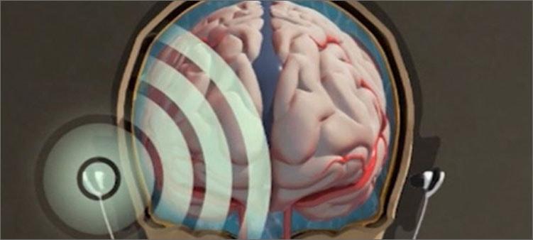 влияние-наушников-на-мозг